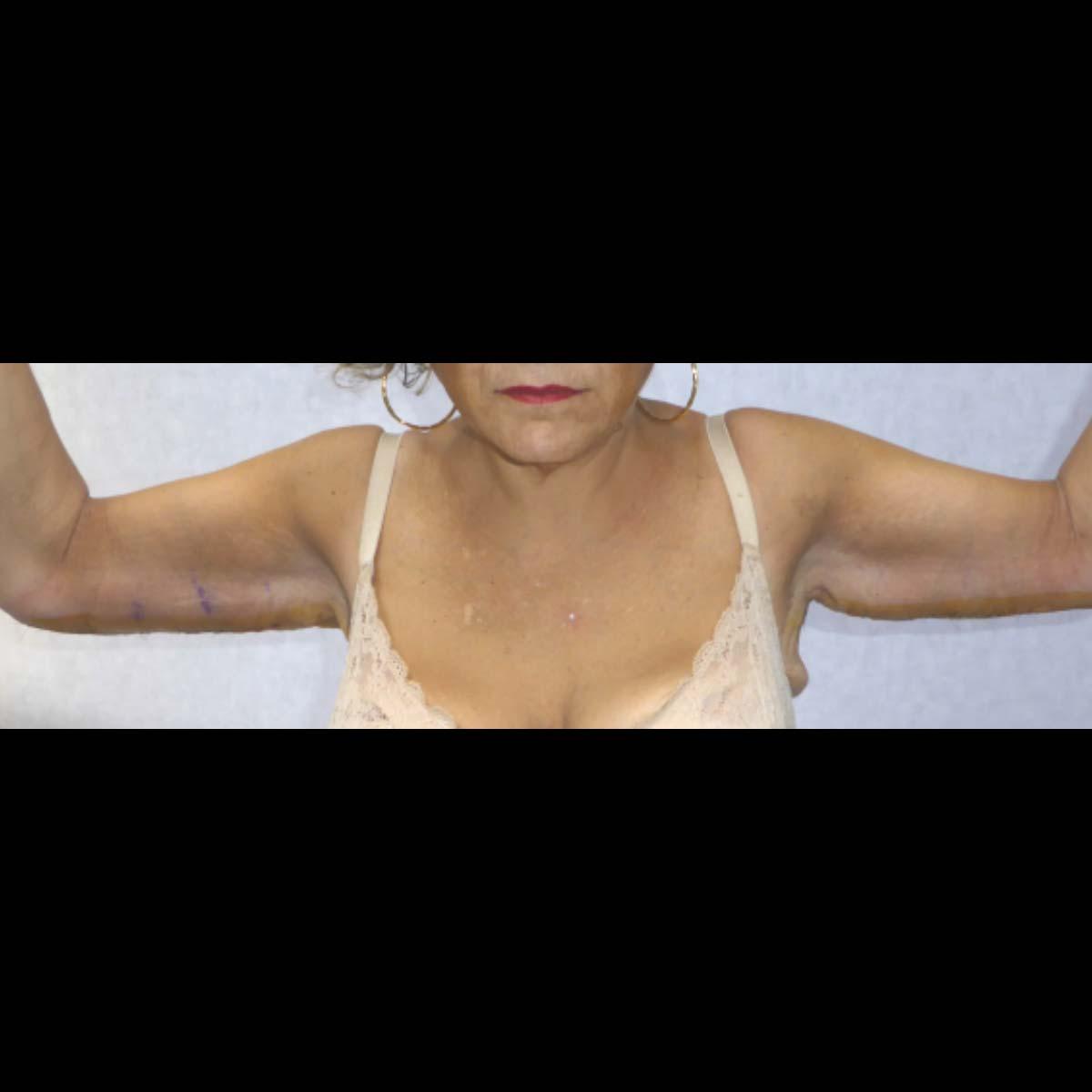 lifting-braccia-003b