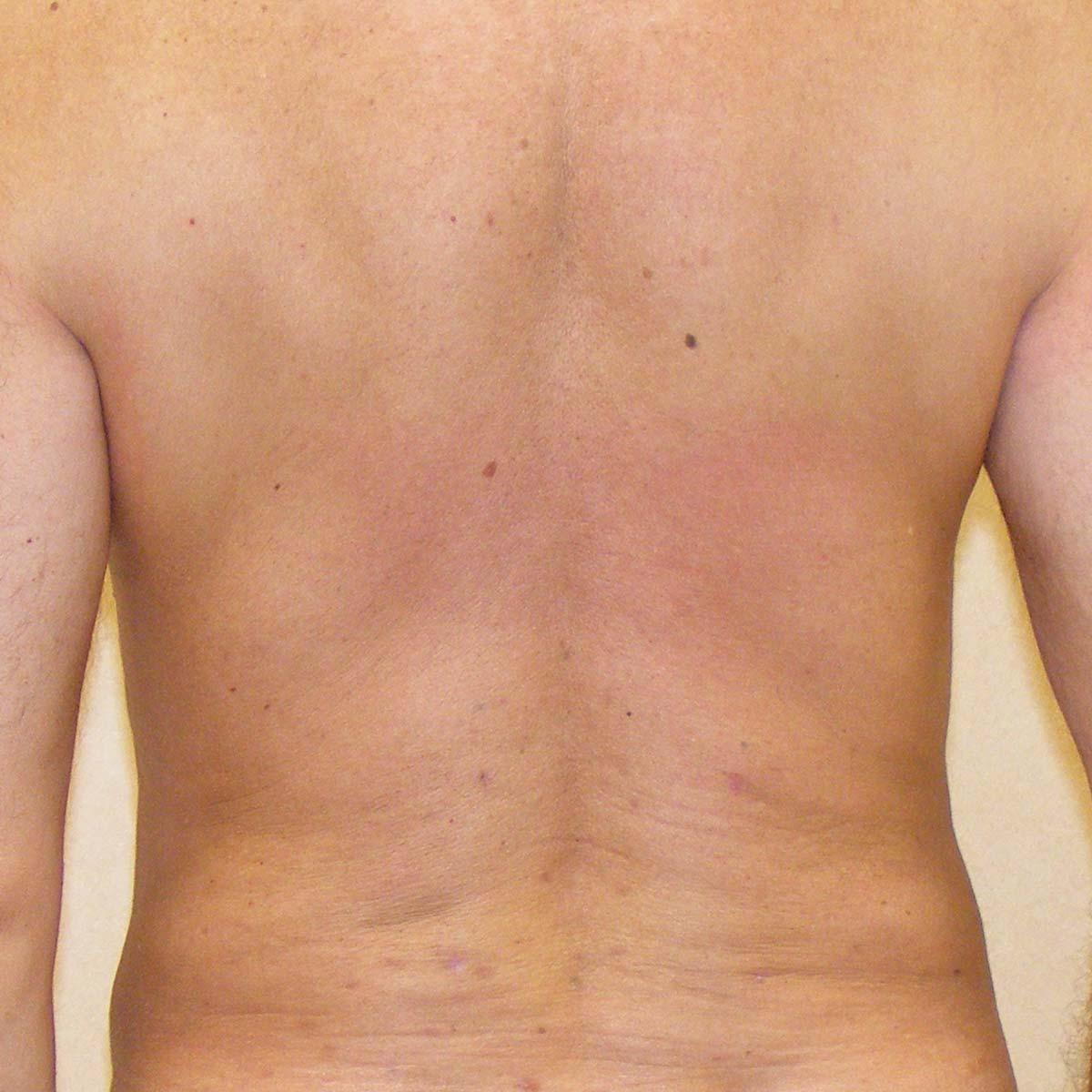 liposuzione-004b