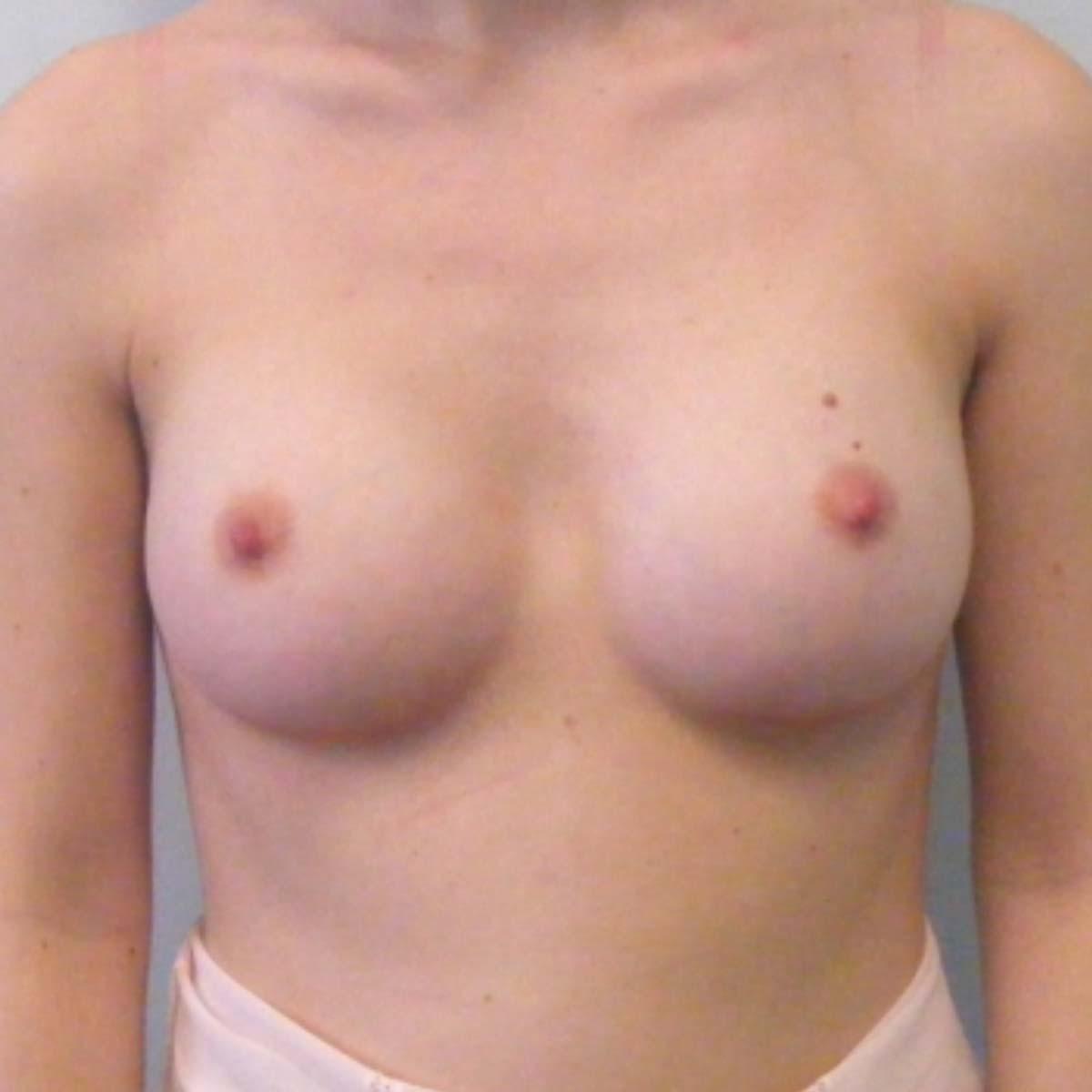 mastoplastica-additiva-anatomiche-002b
